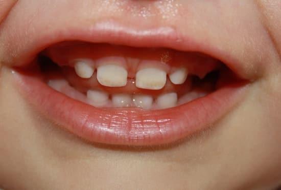Большие щели между зубами