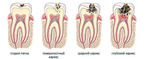 почему болят зубы при чистке