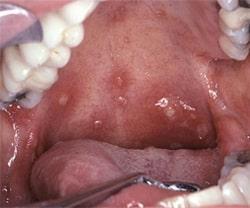 Герпесный стоматит