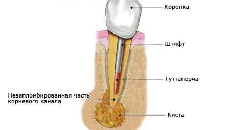 Лечение кисты на десне рекомендации по удалению