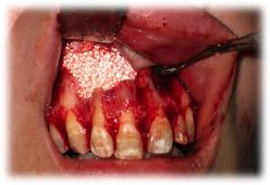 Рана заполнена гранулами остеопластического материала