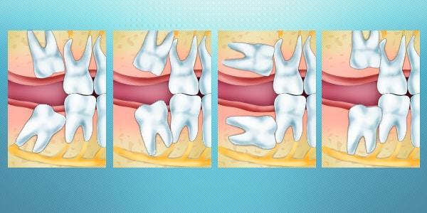 Лечение при воспалении слёзного канала