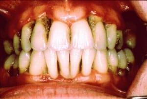 Периодонтит - фото 1