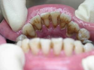 Зубной камень - фото 5