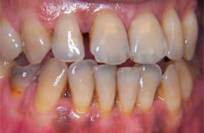 передонтитный зуб фото