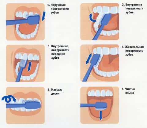 Как правильно чистить зубы,