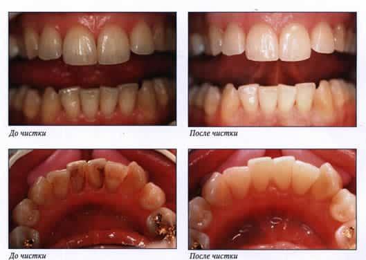 Фото до и после удаления зубного камня ультразвуком