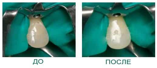 Защита околозубных тканей