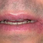 Болячки в уголках рта