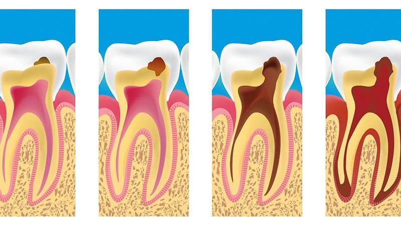 Чем успокоить зубную боль