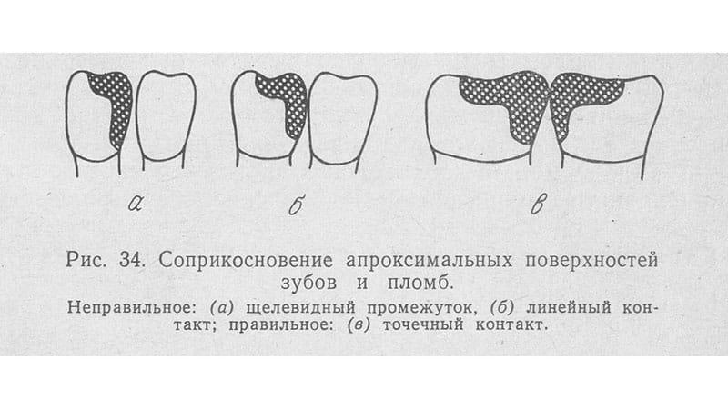 Пломбирование зубов и воспаление десен