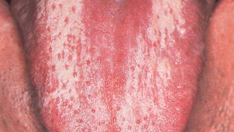 Под языком белая болячка лечение