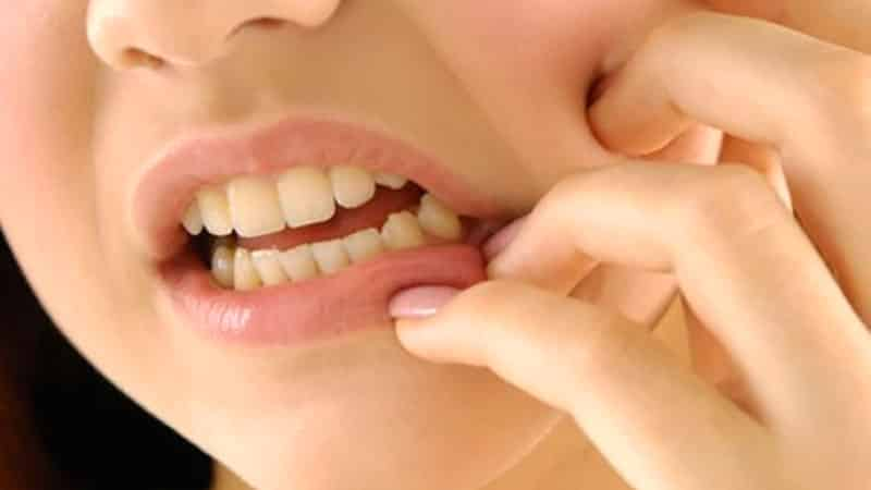 почему бывает запах изо рта