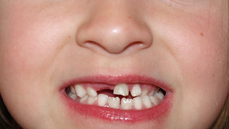 Как должны расти зубы у ребенка