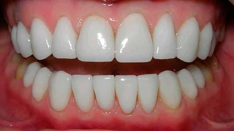 Устанавливаем виниры на зубы