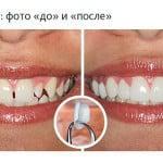 Установка керамических пластин на зубы