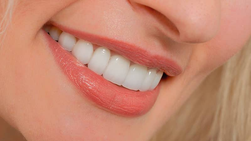 установка винир на зубы видео