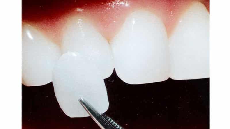 Примерка и крепление люминиров на зубы