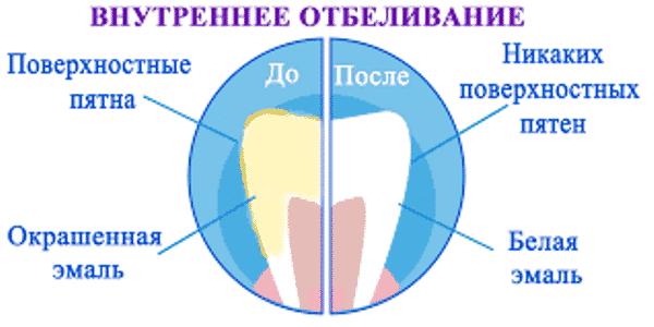 полоски для отбеливания зубов crest whitestrips отзывы
