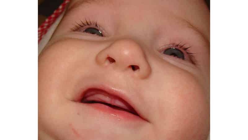 Прорезывание зубов у ребенка в 3 месяца