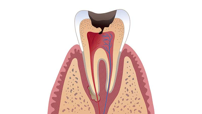 Опухла десна под зубом