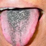 Синий налет на языке
