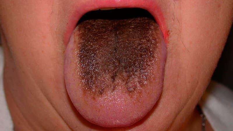 Аллергия у ребенка лечение народными способами