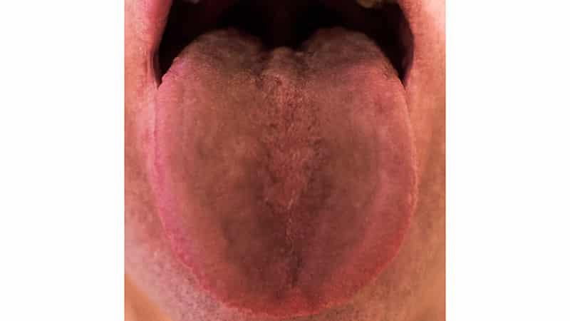 Грыжа брюшная народное средство лечение
