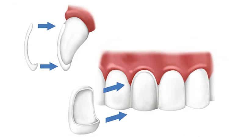 Виниры на зубых - схема установки