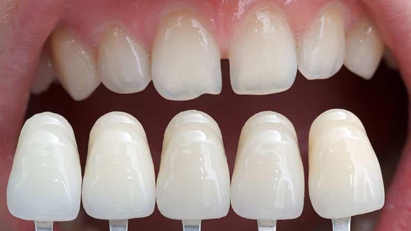 Крепим виниры на зубы