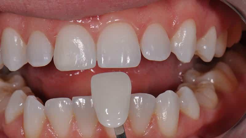 Крепление виниров на зубы фото