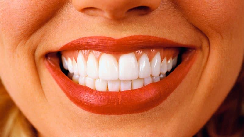 Сколько стоит поставить виниры на зубы
