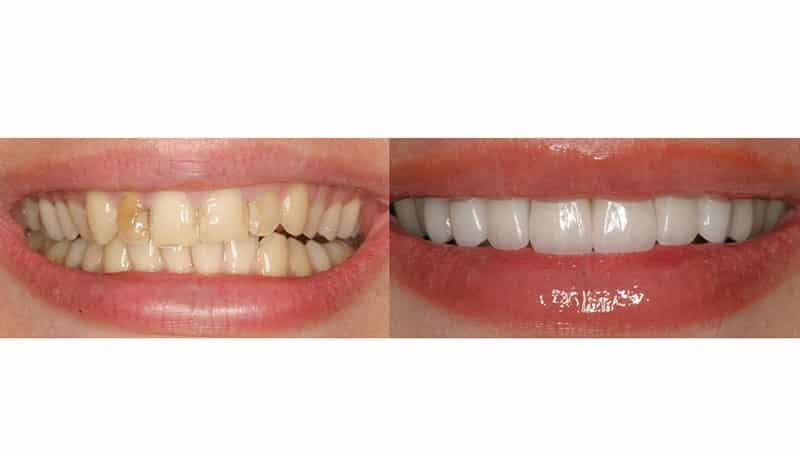 Виниры на зубы - что это такое?