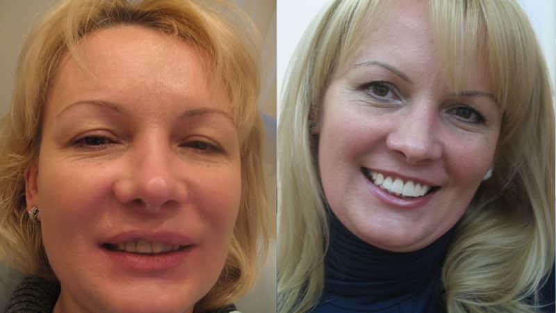Установка виниров на зубы - фото до и после