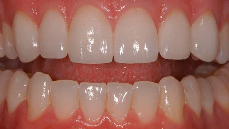Установленные виниры на зубы