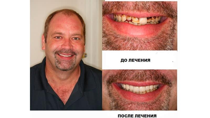 Зубы с винирами