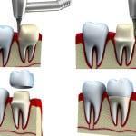 Протезирование зубов как причина гингивита