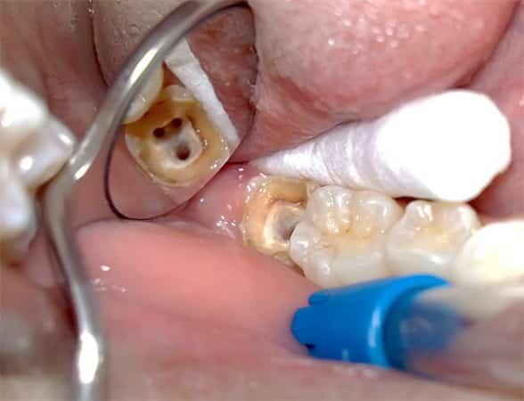 Убить нерв зуба в домашних условиях