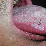 Язвы на языке - как лечить