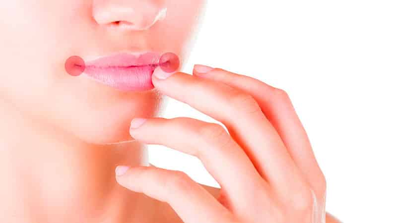 При лечении периодонтитов чем пломбируют каналы зуба