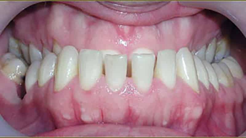 Исправление зубов у взрослых