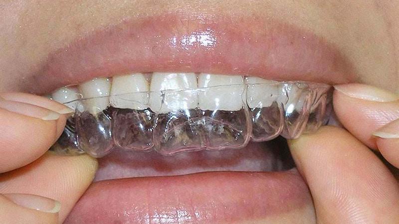 Исправление зубов без брекетов у взрослых фото