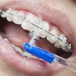 Уход за полостью рта при наличии ортодонтических конструкций