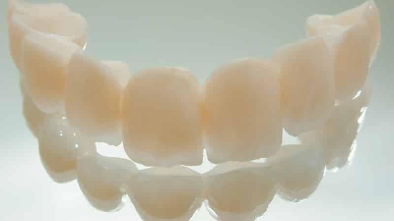 Материалы для реставрации зубов