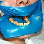 Реставрация зубов пломбировочным материалом фото
