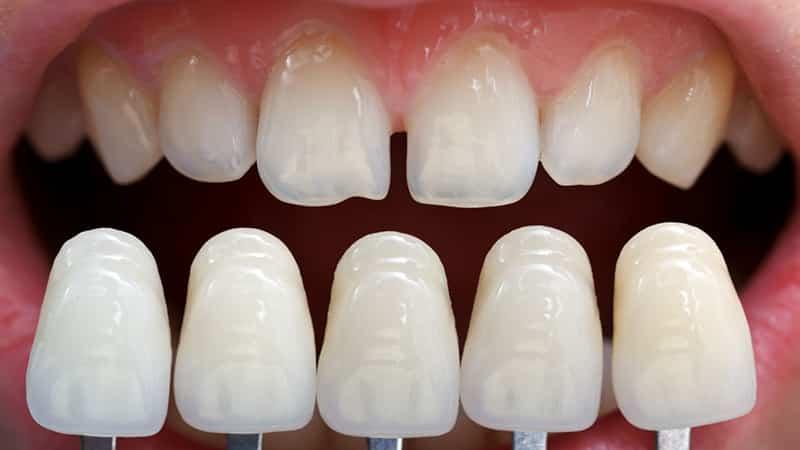 Реставрация переднего зуба фотоРеставрация переднего зуба фото