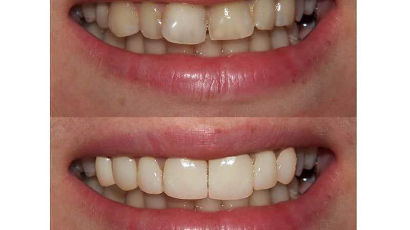 Реставрация кривых зубов фото до и после