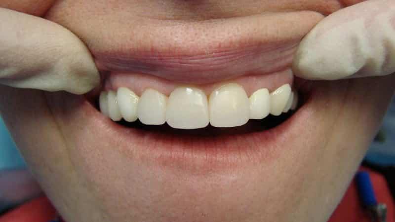 Восстановление зубов технологии