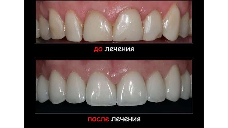 Композитная реставрация зубов фото до и после