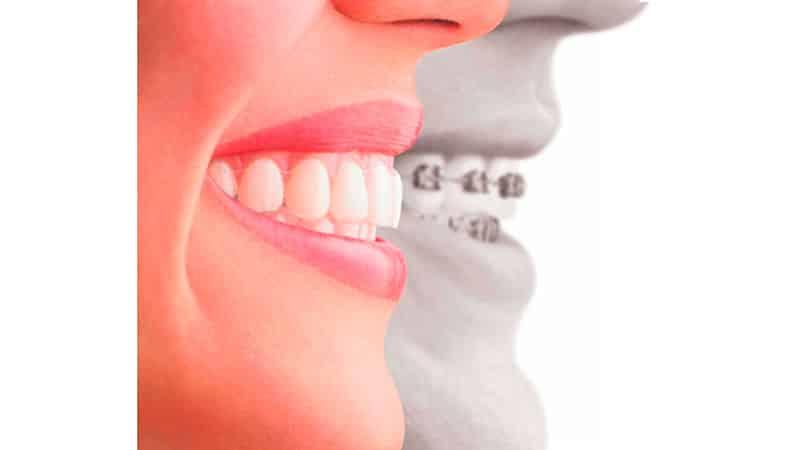 Выравнивание зубов у взрослых